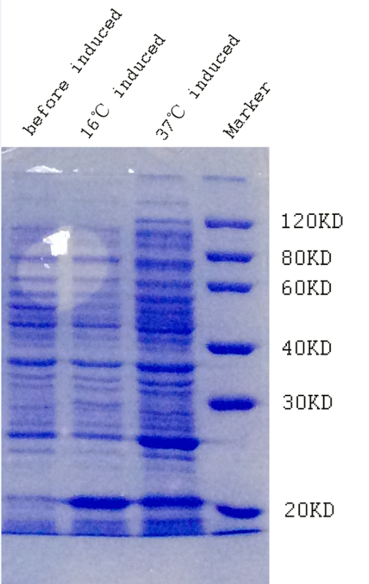 IPTG induced Asprosin protein expression